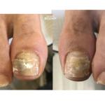 バドミントンをされるお客様の足爪の補強