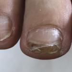 フットネイルケア 衝撃により二枚爪になってしまった爪を保護