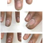 右手中指の爪が割れてしまったピッチャーさん